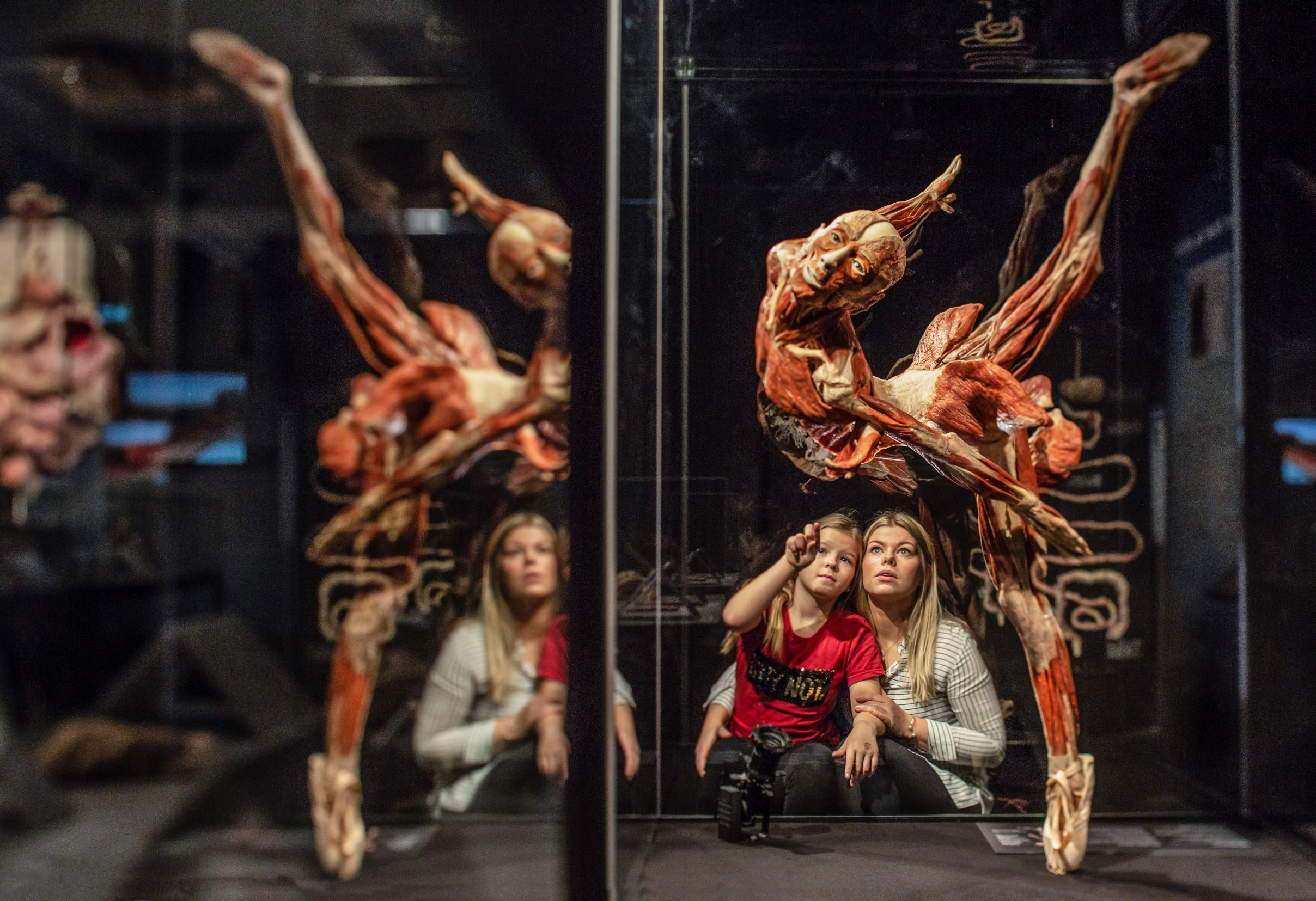 Great Lakes Science Center to open BODY WORLDS Rx on March 20